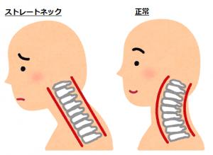 sick_straight_neck
